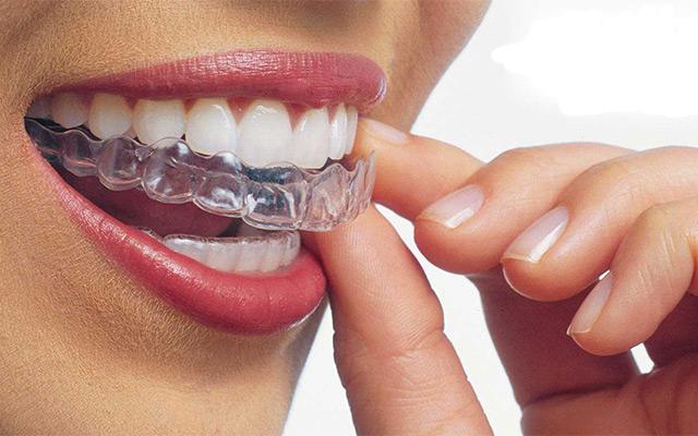 Braces_Canty_Dental